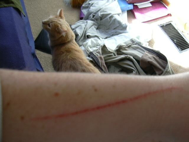 My cleaned up arm after we got home from the vet.  When we were leaving, it was dripping blood.